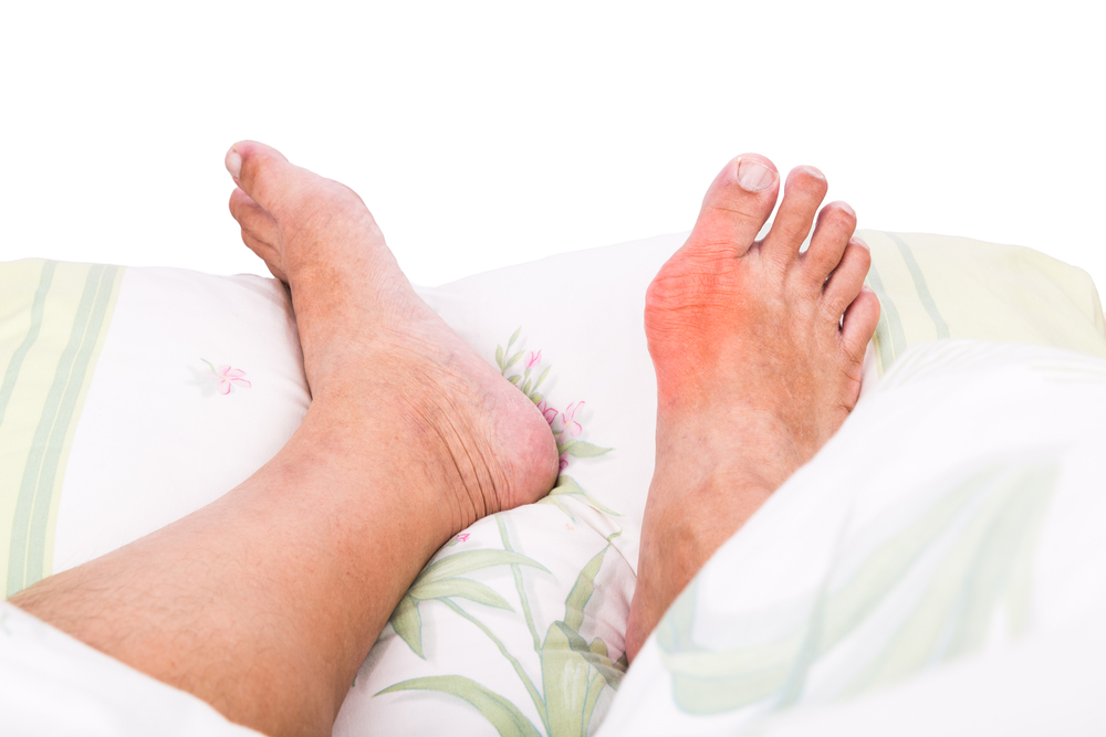 What Causes Gout